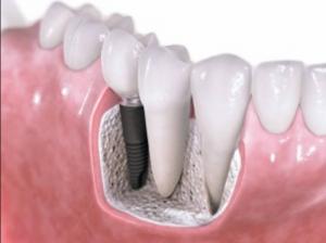 Dental Implants Treatments