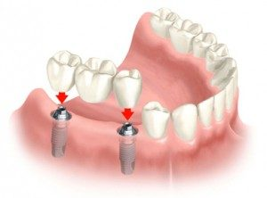 Dental Implant Scenarios
